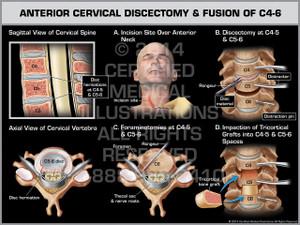 Exhibit of Anterior Cervical Discectomy & Fusion of C4-6.