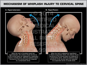 Exhibit of Mechanism of Whiplash Injury to Cervical Spine Male.