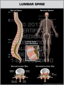 Exhibit of Lumbar Spine.