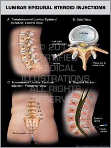 Exhibit of Lumbar Epidural Steroid Injections.
