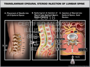 Exhibit of Translaminar Epidural Steroid Injection of Lumbar Spine Male.