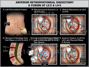 Exhibit of Anterior Retroperitoneal Discectomy & Fusion at L2-3 & L4-5.