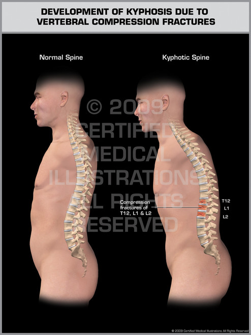 Exhibit of Development of Kyphosis Due to Vertebral Compression Fractures Male.