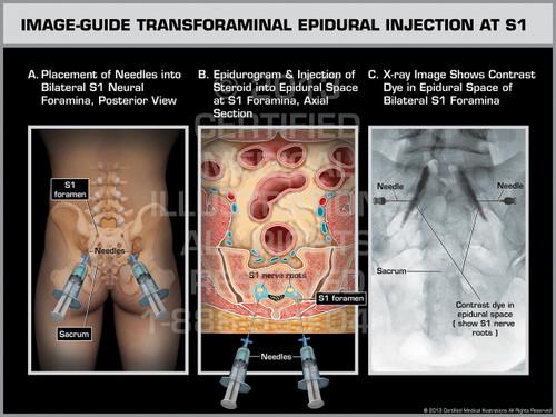Exhibit of Image-Guide Transforaminal Epidural Injection at S1.