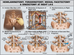 Exhibit of Hemilaminotomy, Foraminotomy, Medial Facetectomy & Discectomy at Right L4-5.