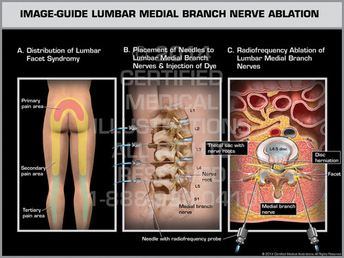 Exhibit of Image-Guide Lumbar Medial Branch Nerve Ablation Male.