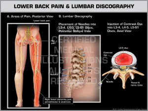 Exhibit of Lower Back Pain & Lumbar Discography.