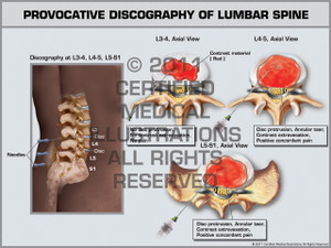 Exhibit of Provocative Discography of Lumbar Spine.