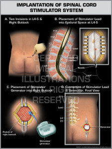 Exhibit of Implantation of Spinal Cord Stimulator System.