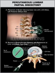 Exhibit of Percutaneous Lumbar Partial Discectomy.