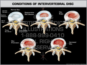 Exhibit of Conditions of Intervertebral Disc.