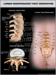 Exhibit of Lumbar Radiofrequency Facet Denervation.