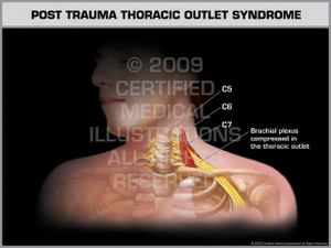 Exhibit of Post Trauma Thoracic Outlet Syndrome Male.