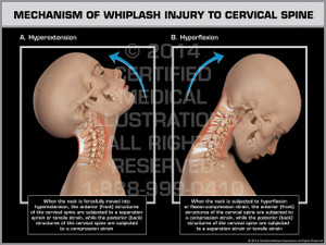 Exhibit of Mechanism of Whiplash Injury to Cervical Spine Female.