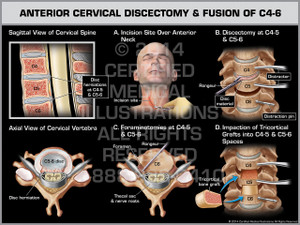 Exhibit of Anterior Cervical Discectomy & Fusion of C4-6.