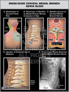 Exhibit of Image-Guide Cervical Medial Branch Nerve Block Male.