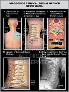 Exhibit of Image-Guide Cervical Medial Branch Nerve Block Female.
