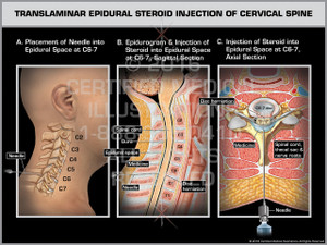 Exhibit of Translaminar Epidural Steroid Injection of Cervical Spine Male.