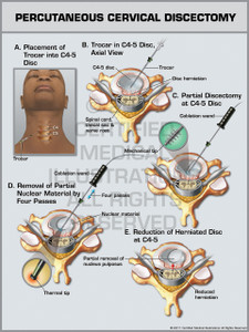 Exhibit of Percutaneous Cervical Discectomy.