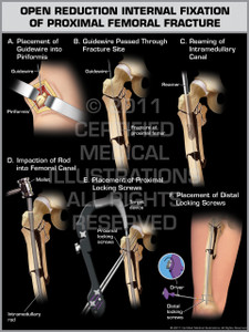 Exhibit of Open Reduction Internal Fixation of Proximal Femoral Fracture.