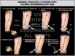 Exhibit of Femoral Fracture & Fixation with Flexible Intramedullary Nail.