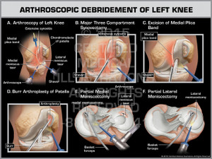 Arthroscopic Debridement of Left Knee