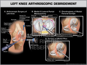 Exhibit of Left Knee Arthroscopic Debridement.