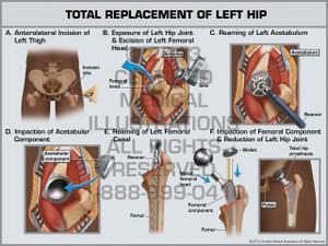 Exhibit of Total Replacement of Left Hip.