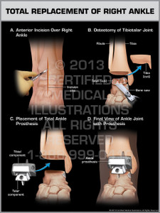 Exhibit of Total Replacement of Right Ankle.