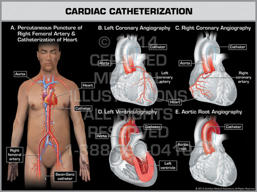 Exhibit of Cardiac Catheterization Male.