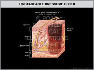 Exhibit of Unstageable Pressure Ulcer.