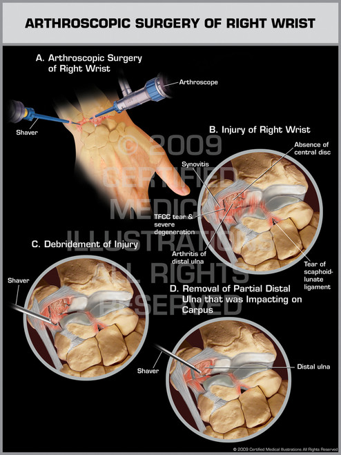 Exhibit of Arthroscopic Surgery of Right Wrist.