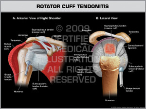 Exhibit of Rotator Cuff Tendonitis - Right.