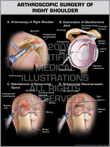 Exhibit of Arthroscopic Surgery of Right Shoulder.