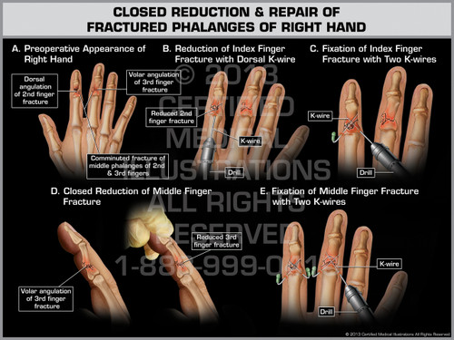 Exhibit of Closed Reduction & Repair of Fractured Phalanges of Right Hand.