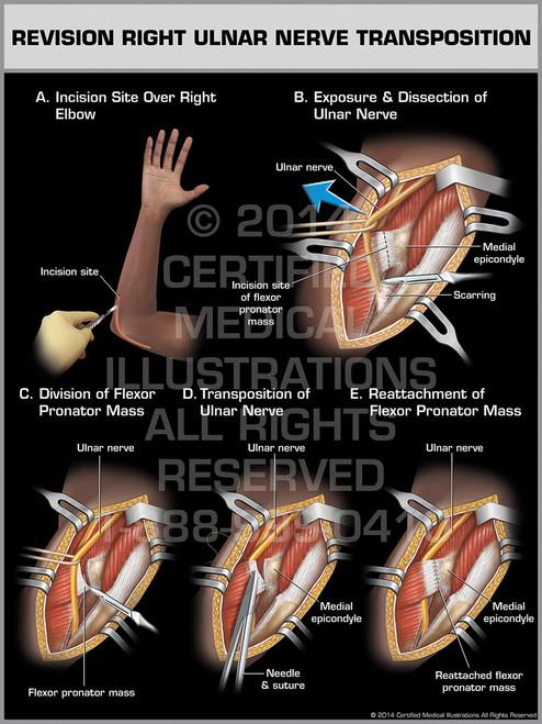 Revision Right Ulnar Nerve Transposition