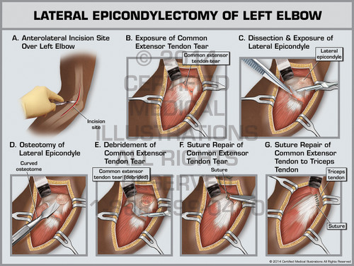Lateral Epicondylectomy of Left Elbow