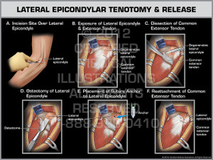 Lateral Epicondylar Tenotomy & Release