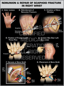 Exhibits of Nonunion & Repair of Scaphoid Fracture in Right Wrist