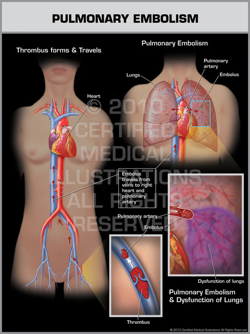 Pulmonary Embolism Female