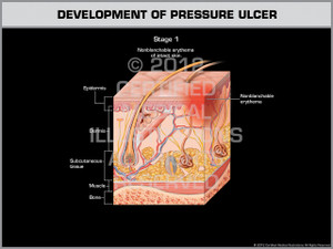 Development of Pressure Ulcer - Stage 1