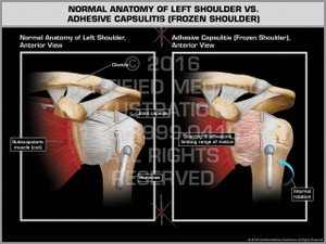 Exhibit of Normal Anatomy of Left Shoulder vs. Adhesive Capsulitis (Frozen Shoulder) - Print Quality Instant Download