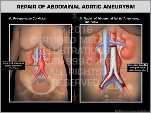 Exhibit of Repair of Abdominal Aortic Aneurysm