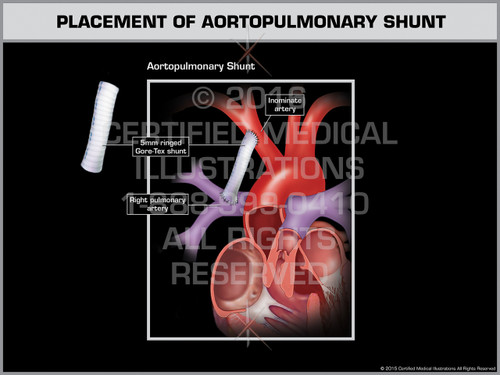 Exhibit of Placement of Aortopulmonary Shunt - Print Quality Instant Download