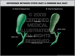 Difference Between Cystic Duct & Common Bile Duct