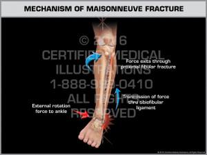 Exhibit of Mechanism of Maisonneuve Fracture