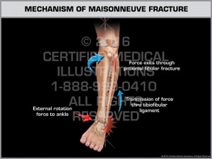 Exhibit of Mechanism of Maisonneuve Fracture - Print Quality Instant Download