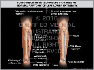 Exhibit of Comparison of Maisonneuve Fracture vs. Normal Anatomy of Left Lower Extremity - Print Quality Instant Download