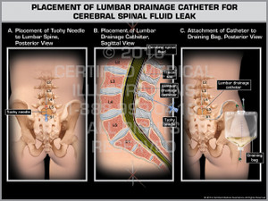 Exhibit of Placement of Lumbar Drainage Catheter for Cerebral Spinal Fluid Leak - Print Quality Instant Download