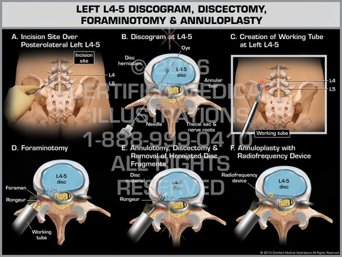 Exhibit of Left L4-5 Discogram, Discectomy, Foraminotomy & Annuloplasty - Print Quality Instant Download